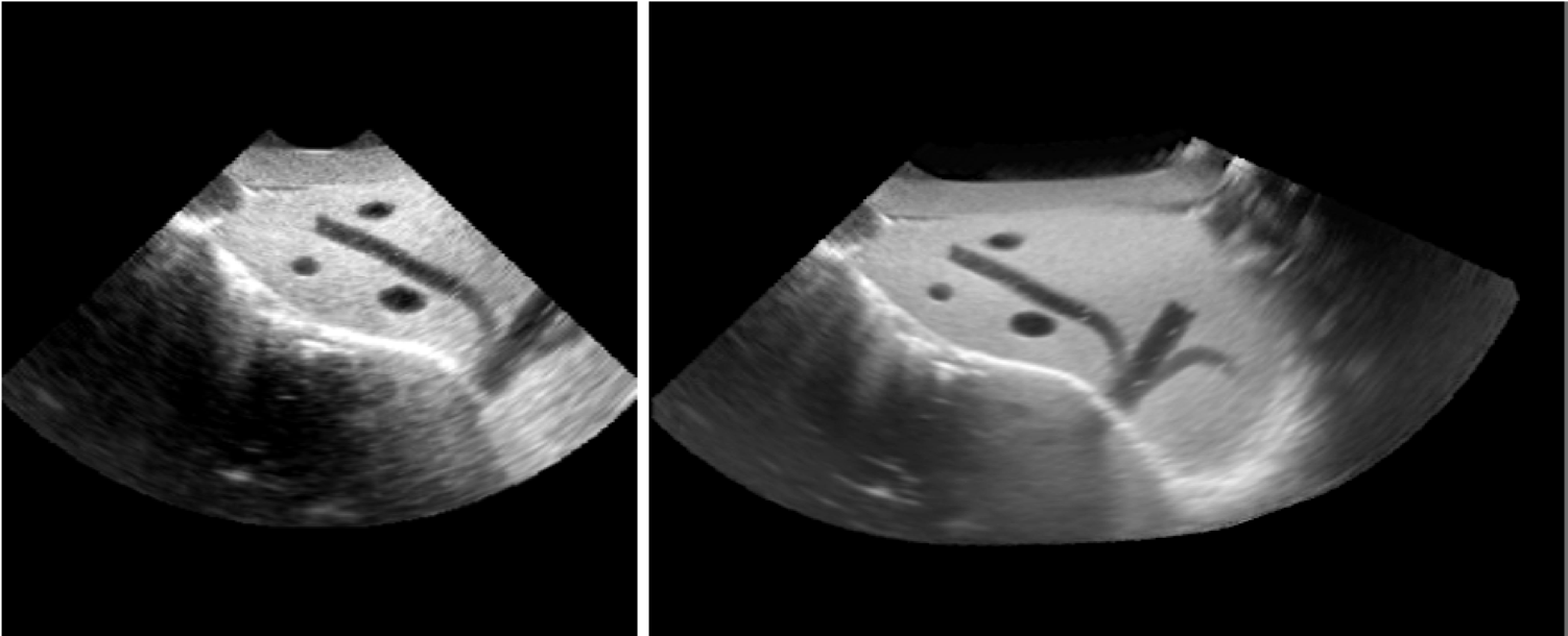 Transformation optimization and image blending for 3D liver ultrasound series stitching
